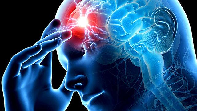 инсульт мозг
