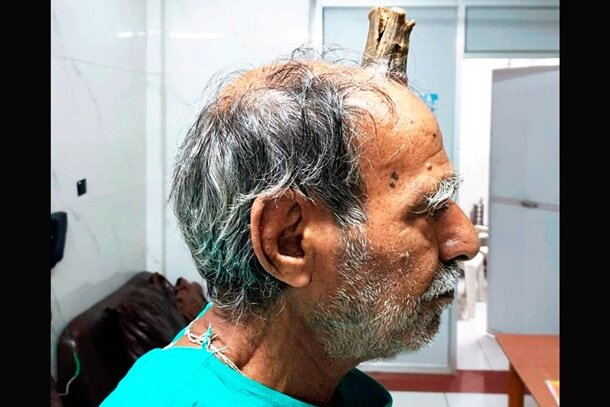 Жителю Индии удалили 10-сантиметровый рог: фото