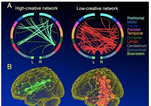 mozg-kreativnost