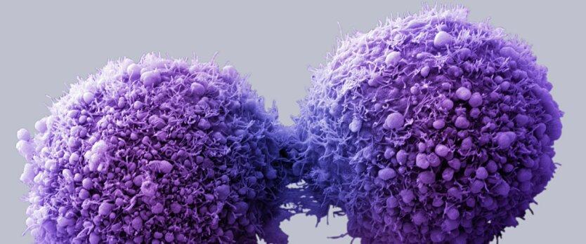клетки рак
