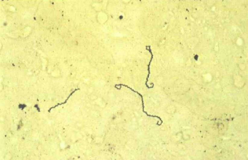 leptospiroz